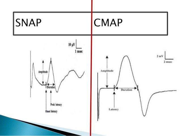 Nerve conductive studies facial