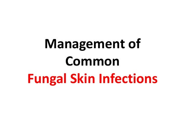 Management of      CommonFungal Skin Infections