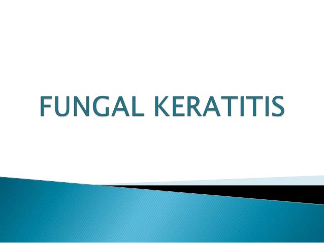       Fungal Keratitis is one of the most difficult forms of microbial keratitis to diagnose & to treat successfully. F...