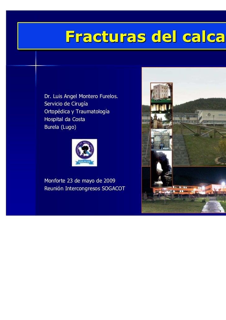 Fracturas del calcaneoDr. Luis Angel Montero Furelos.Servicio de CirugíaOrtopédica y TraumatologíaHospital da CostaBurela ...