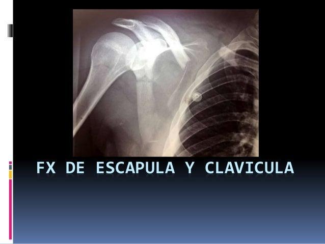FX DE ESCAPULA Y CLAVICULA