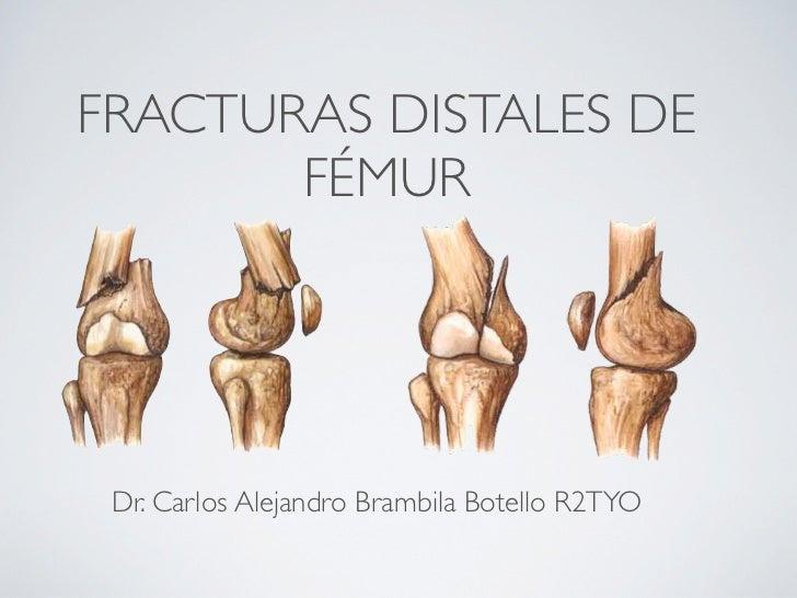 FRACTURAS DISTALES DE       FÉMUR Dr. Carlos Alejandro Brambila Botello R2TYO