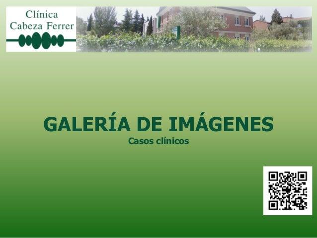 GALERÍA DE IMÁGENES      Casos clínicos