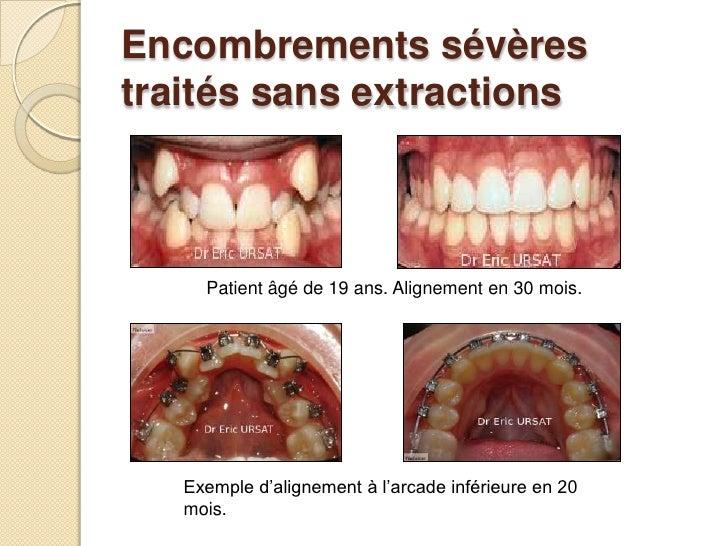 Encombrements sévères traités sans extractions<br />Patient âgé de 19 ans. Alignement en 30 mois.<br />Exemple d'aligne...