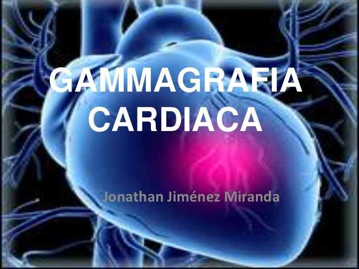 GAMMAGRAFIA  CARDIACA  Jonathan Jiménez Miranda