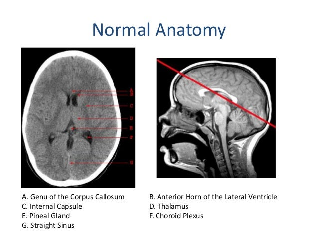 Brain Normal Calcification Normal Calcifications in The