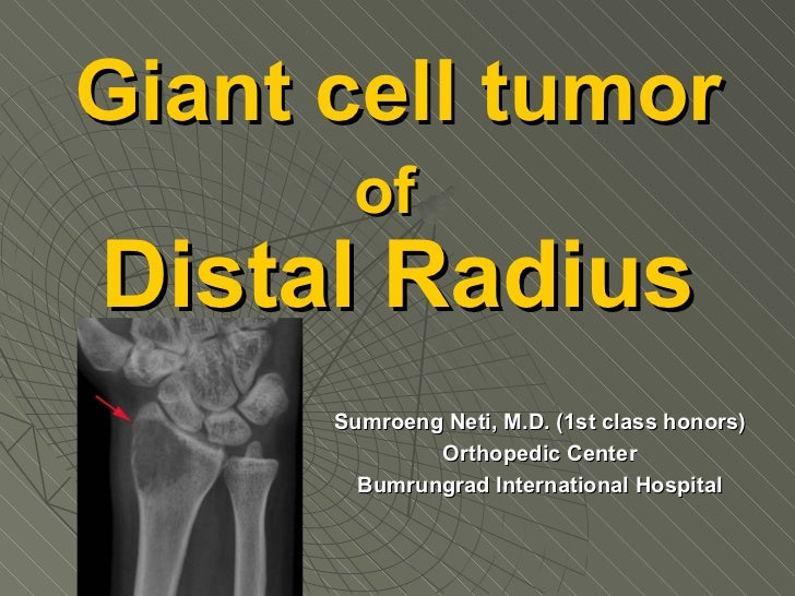 Giant cell tumor of   Distal Radius Sumroeng Neti, M.D. (1st class honors) Orthopedic Center Bumrungrad International Hosp...