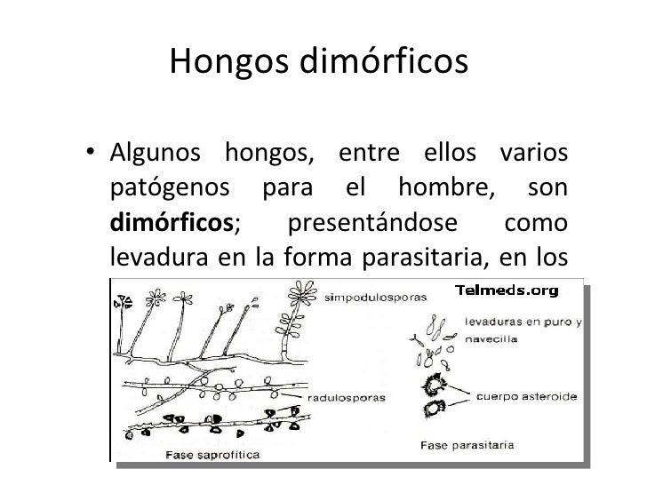 Como limpiar hongos moho y humedades remove mold - Como quitar moho de la pared ...