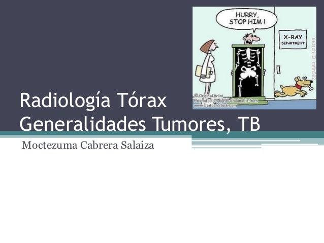 Generalidades rx tórax tumores tb