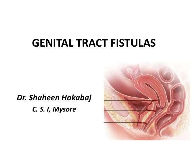 GENITAL TRACT FISTULASDr. Shaheen HokabajC. S. I, Mysore