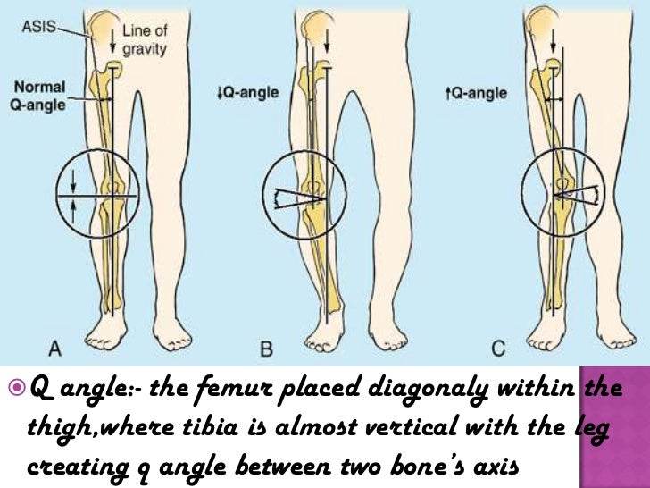 article a normal knee alignment b genu varus bow legged c genu valgum knock kneed