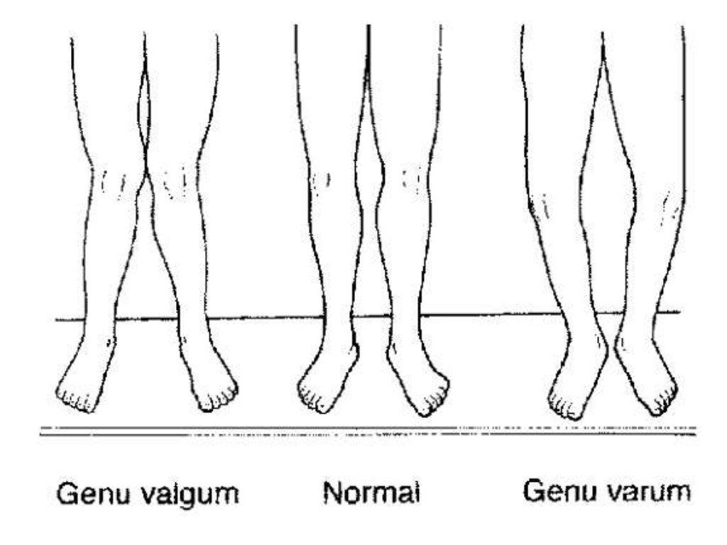 Genu Varum - Viewing Gallery