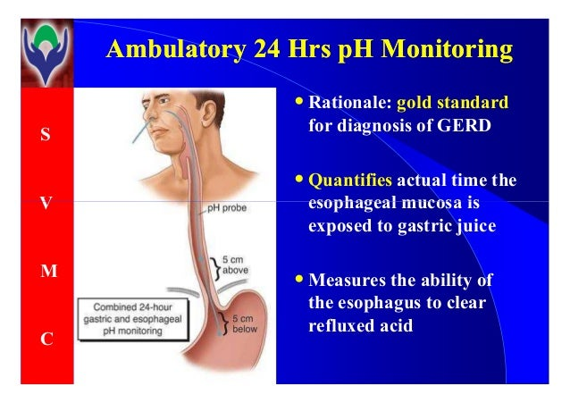 Gastric ph probe study procedure