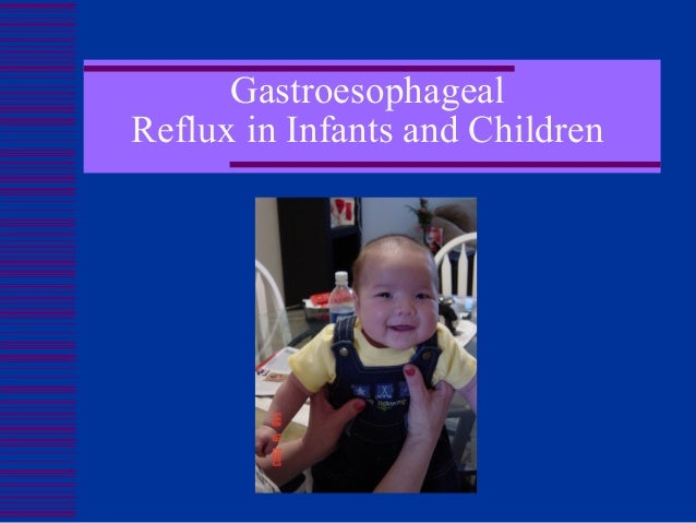 GastroesophagealReflux in Infants and Children         Melissa Velez