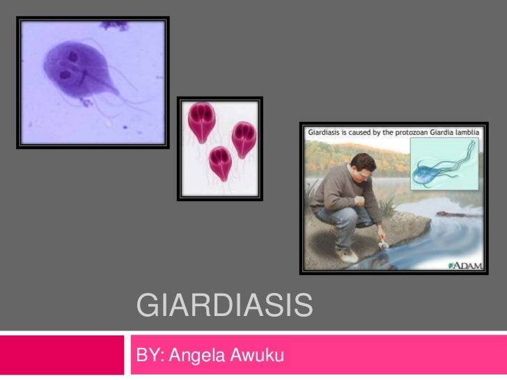 GiardIasis<br />BY: Angela Awuku<br />