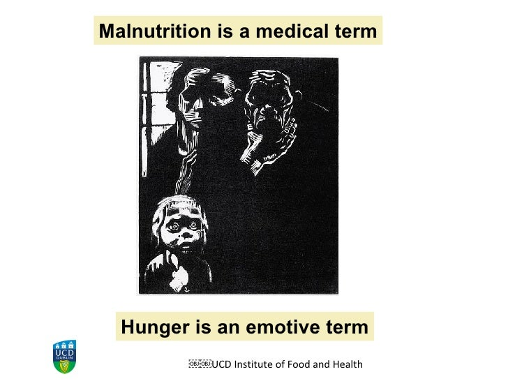 UCD Institute of Food and Health Hunger is an emotive term Malnutrition is a medical term