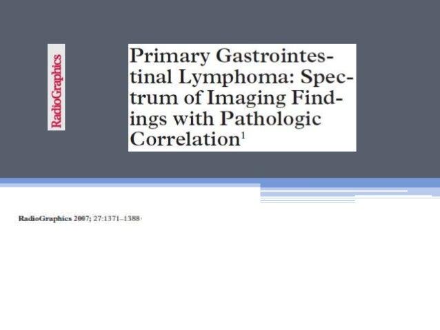 Gastrointestinal lymphoma