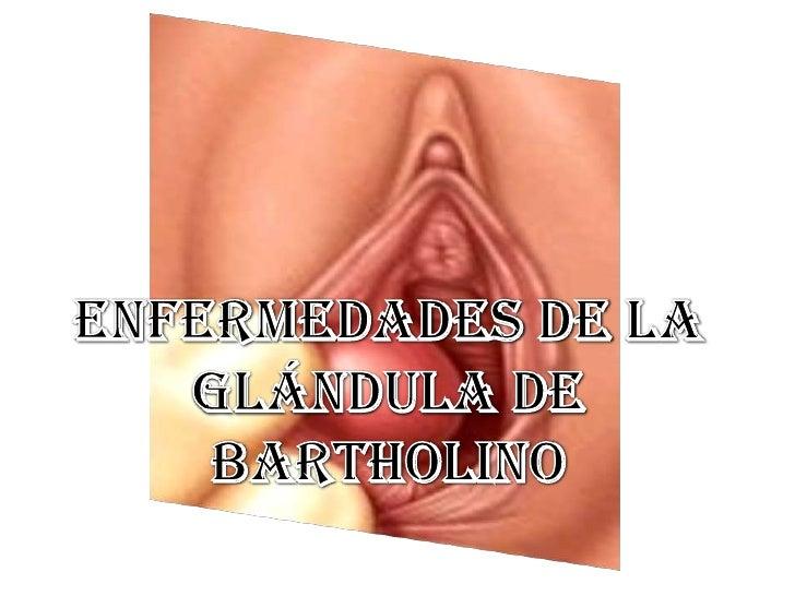ENFERMEDADES de la <br />Glándula de <br />Bartholino<br />