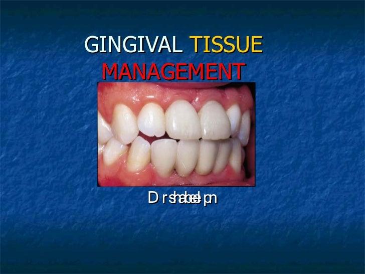 GINGIVAL   TISSUE   MANAGEMENT Dr shabeel pn