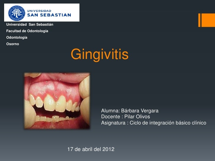 Universidad San SebastiánFacultad de OdontologíaOdontologíaOsorno                             Gingivitis                  ...