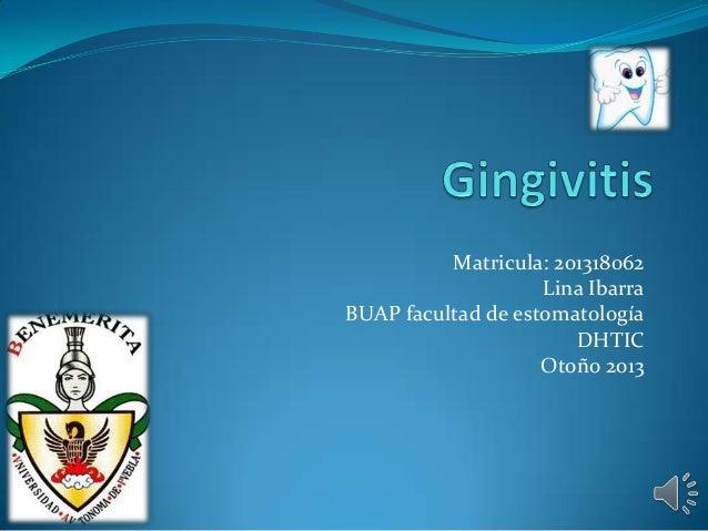 Matricula: 201318062 Lina Ibarra BUAP facultad de estomatología DHTIC Otoño 2013