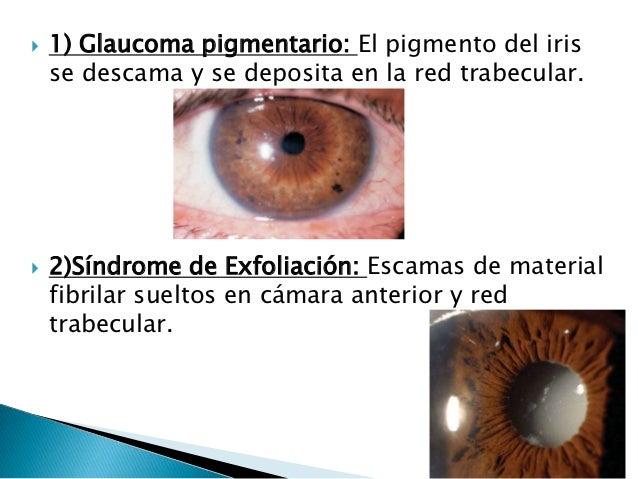 Viagra Glaucoma