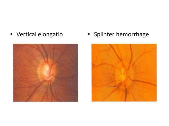 steroid topikal mata