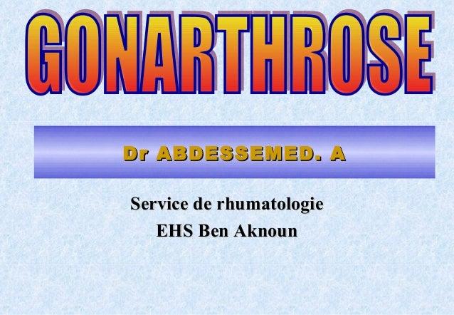 Gonarthrose dr abdessemed