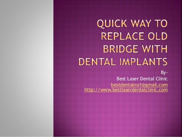 QUICK WAY TO REPLACE OLD BRIDGE WITH DENTAL IMPLANTS PPT