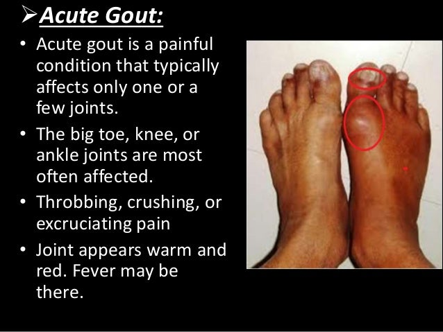 Do You Have Gouty Tophi? - Gout Pictures.net