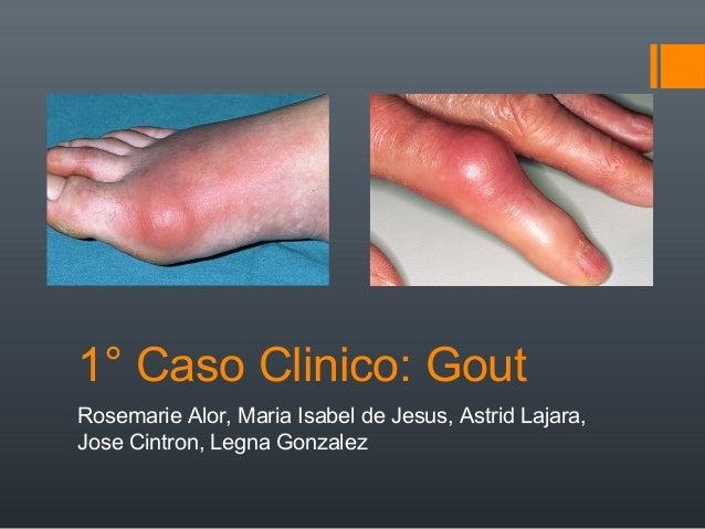1° Caso Clinico: GoutRosemarie Alor, Maria Isabel de Jesus, Astrid Lajara,Jose Cintron, Legna Gonzalez