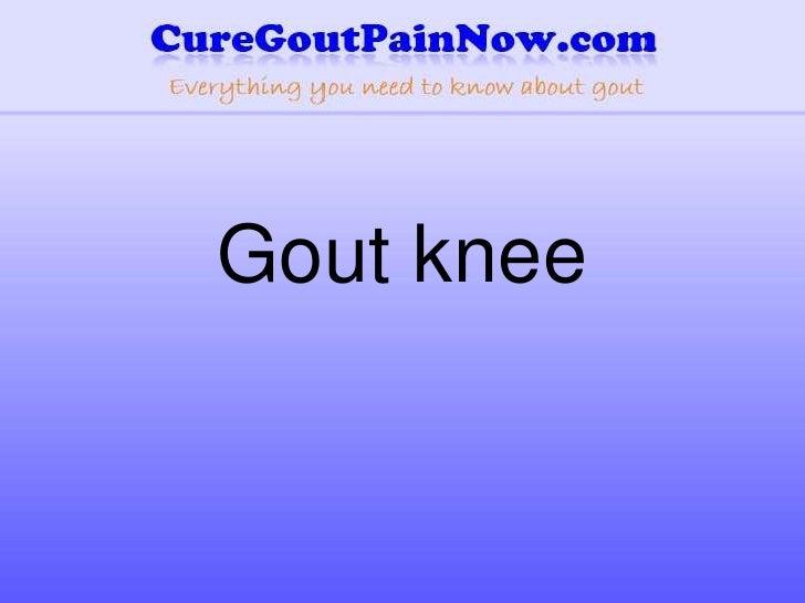 Gout knee<br />