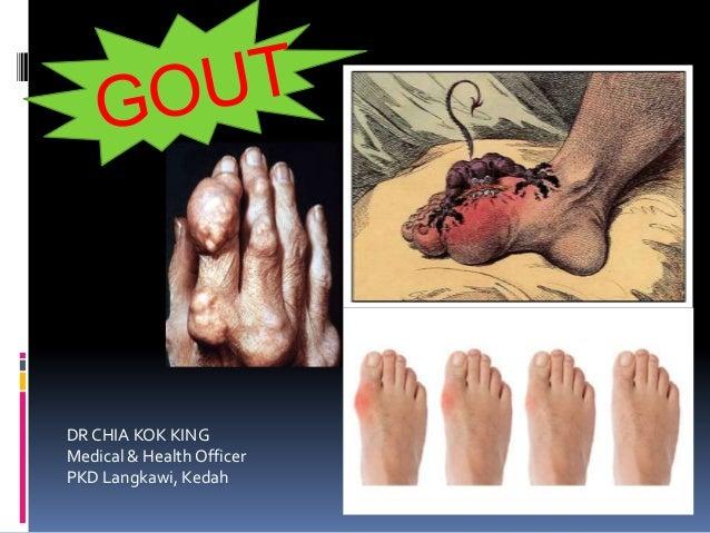 DR CHIA KOK KINGMedical & Health OfficerPKD Langkawi, Kedah