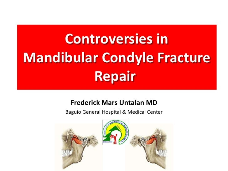 Controversies in Mandible Condylar Fracture Repair