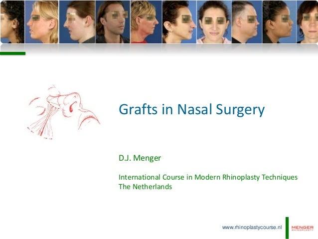 Grafts in Nasal SurgeryD.J. MengerInternational Course in Modern Rhinoplasty TechniquesThe Netherlands                    ...