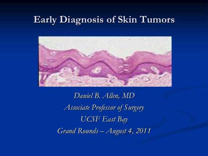 Early Diagnosis of Skin Tumors<br />Daniel B. Allen, MD<br />Associate Professor of Surgery<br />UCSF East Bay<br />Grand ...