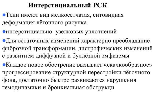 СХЕМА НАЗНАЧЕНИЯ ГКС