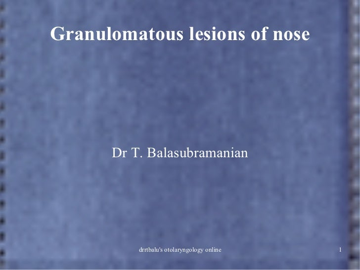 Granuloma nose