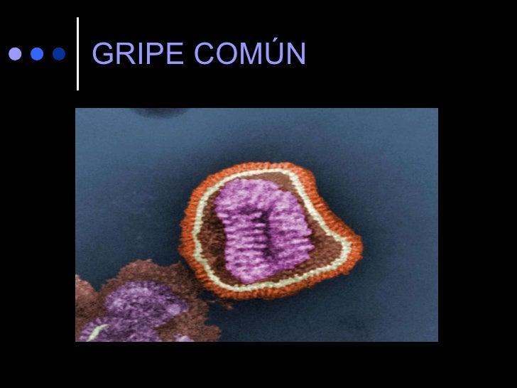 GRIPE COMÚN