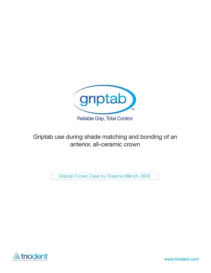 Griptab use during shade matching and bonding of an              anterior, all-ceramic crown              Griptab Crown Ca...