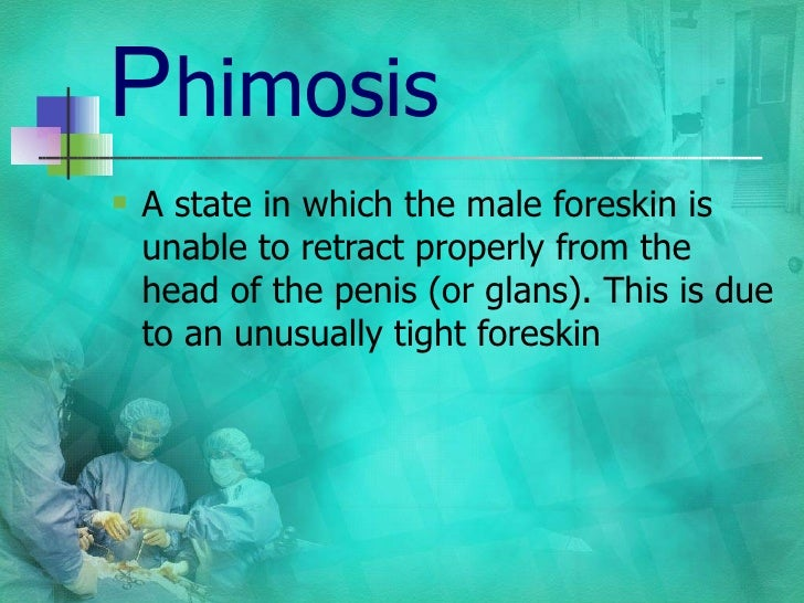 P himosis <ul><li>A state in which the male foreskin is unable to retract properly from the head of the penis (or glans). ...
