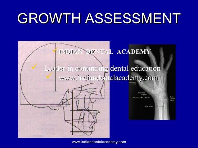 GROWTH ASSESSMENTGROWTH ASSESSMENT www.indiandentalacademy.comwww.indiandentalacademy.com INDIAN DENTAL ACADEMYINDIAN DEN...