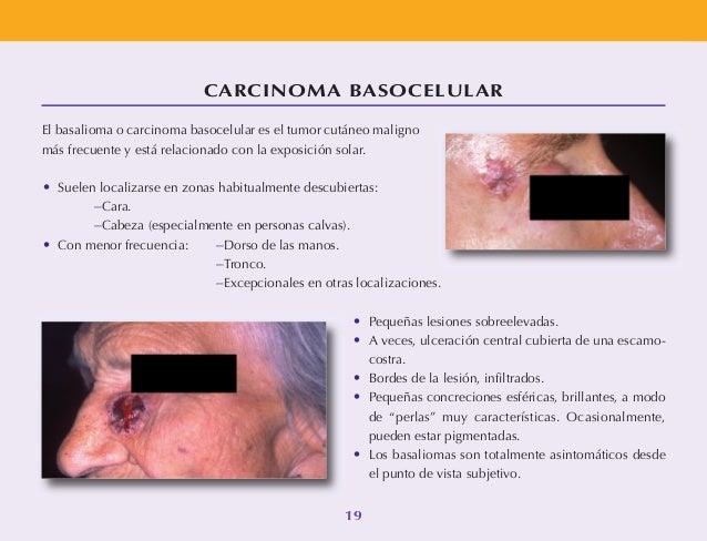 Si hay un tratamiento contra la dermatitis atopicheskogo de la dermatitis