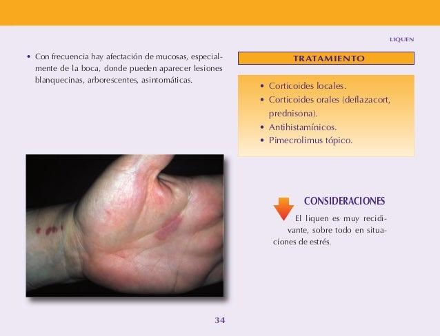 Los ungüentos para el tratamiento de la eccema seca sobre los dedos de las manos