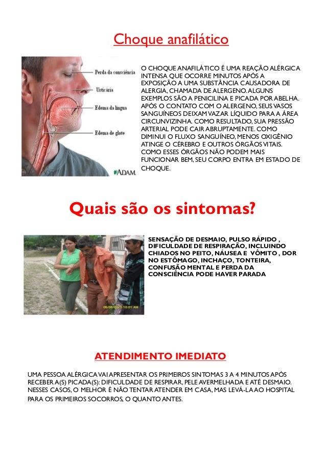 RETIRE O FERRÃO DO INSETO RASPANDO O LOCAL COM ABORDA DE UMA CARTÃO DE CRÉDITO OU COM A UNHA. NÃO PUXE O FERRÃO COM O DEDO...