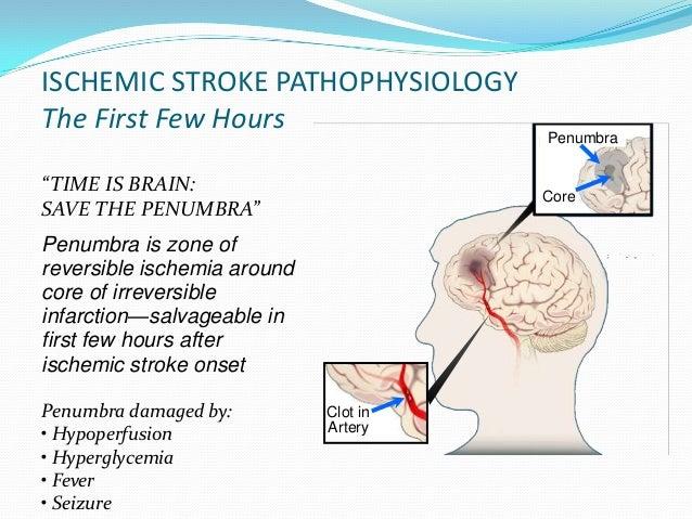 management of ischemic stroke part 1 Critical care management of acute ischemic stroke nerissa u ko, md •blood pressure management •post-stroke cerebral edema • ninds part 1 • ninds part 2.