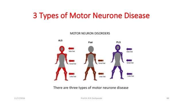 Guillain barre syndrome neuralgia als for Bulbar motor neuron disease