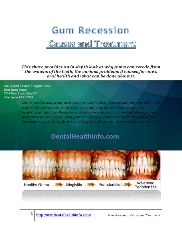Gum Recession-Causes and Treatment