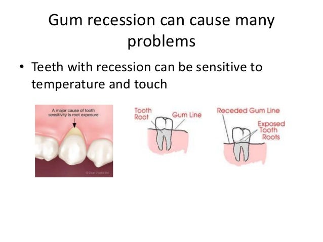 Gum Recession Gum Recession Can Cause Many