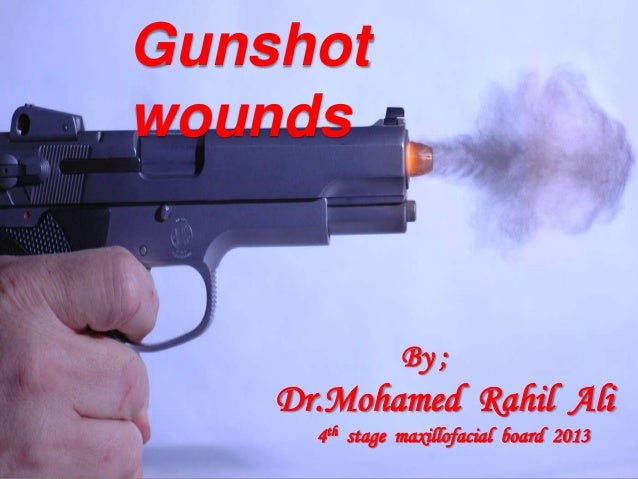 Gunshot wounds By ; Dr.Mohamed Rahil Ali 4th stage maxillofacial board 2013